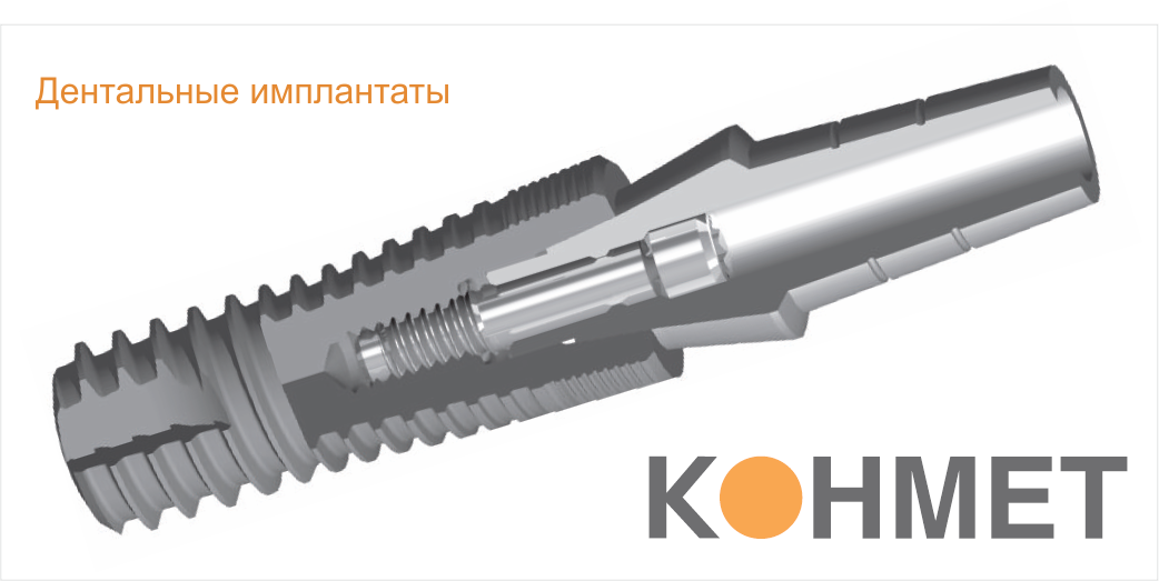 имплантаты_конмет1