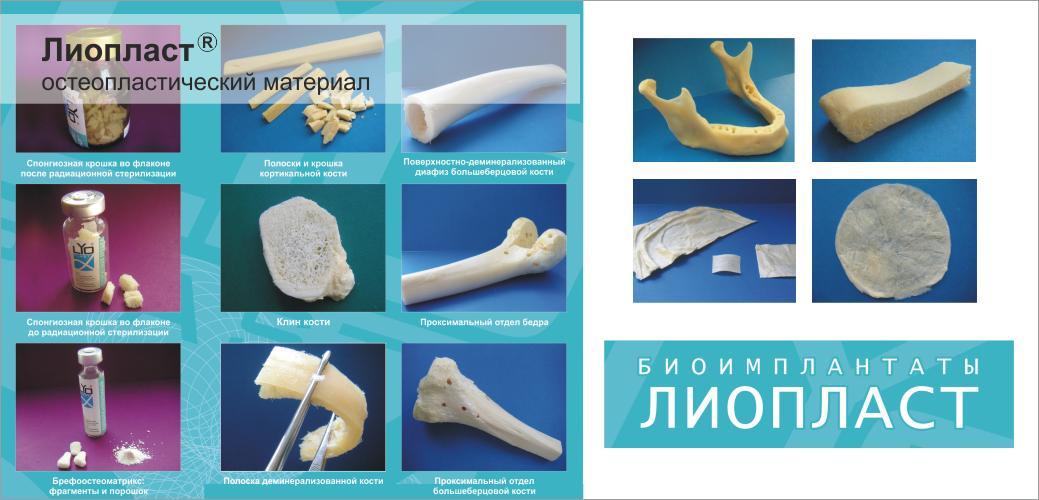 остеопластический_материал_лиопласт_1040